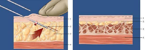 Il petto di operazione su stringimento