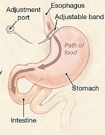 dieta di bypass gastrico solido